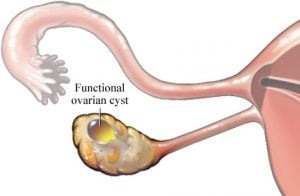 functional ovarian cyst