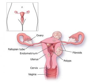 Diagram of female reproductive system with fibroids